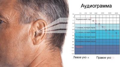 Как правильно расшифровать аудиограмму
