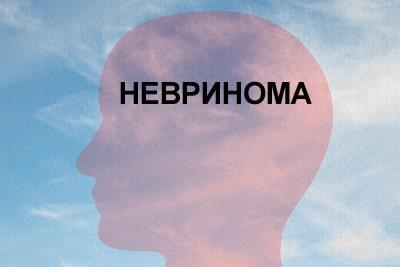 Акустическая невринома – симптомы, диагностика, лечение