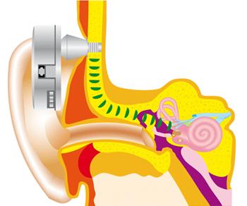 Слуховые аппараты костной проводимости