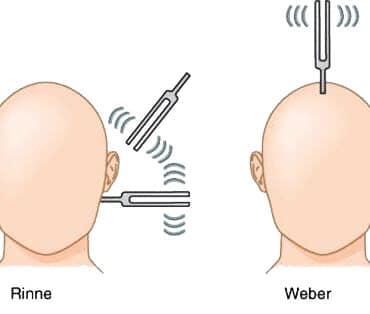 Значение камертонных проб Ринне и Вебера в диагностике тугоухости
