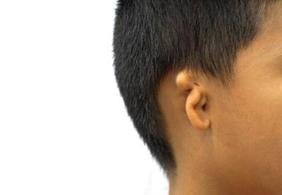 Микротия и атрезия – неполное развитие ушных раковин